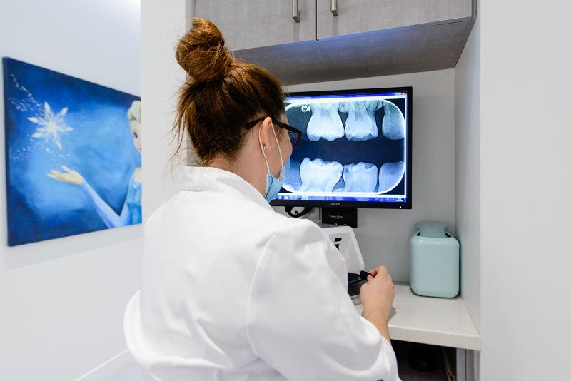 Radiographie numérique indirecte (Optime)